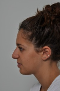This patient (shown before surgery here has an improved but natural look after rhinoplasty.)