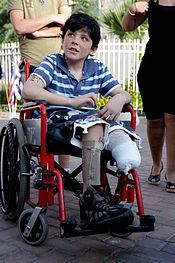 9-year-old Israeli boy Osher Twito lost his leg after a Palestinian Qassam rocket exploded next to him in the city of Sderot (photo credit: CC BY-SA, Edi Israel,wikipedia.org)