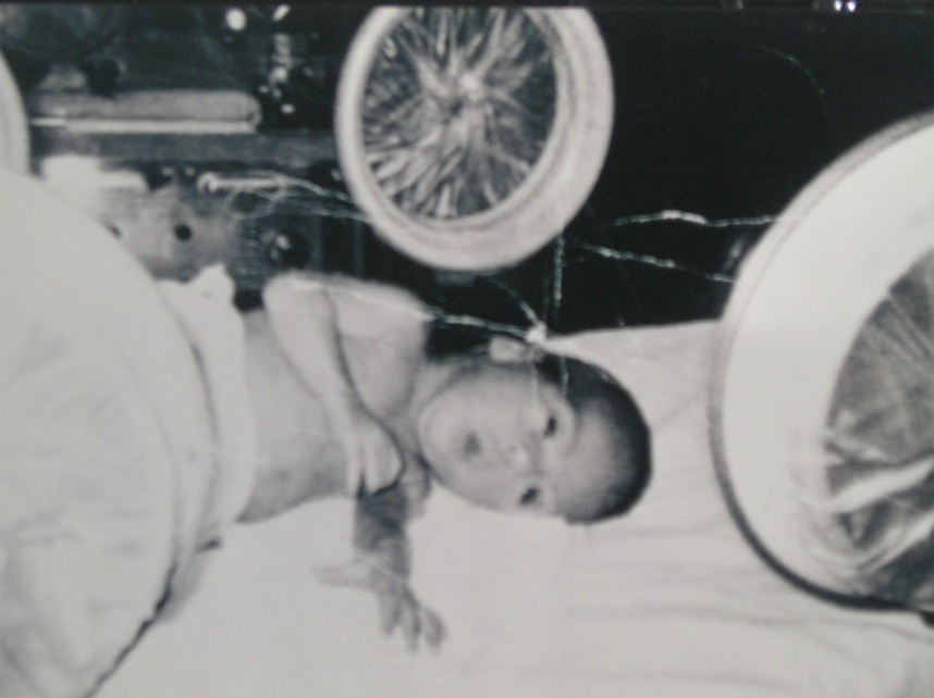 Me as an infant in an incubator, 1970. Born prematurely and missing a limb, I would not have survived under the proposed Graham-Cassidy repeal of the Affordable Care Act.