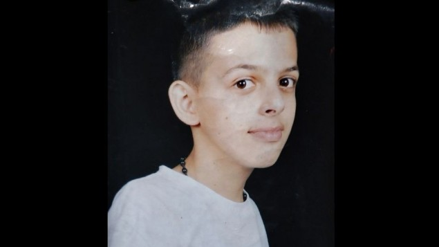 16-year-old Muhammad Abu Khdeir, a Palestinian teenager whose burned