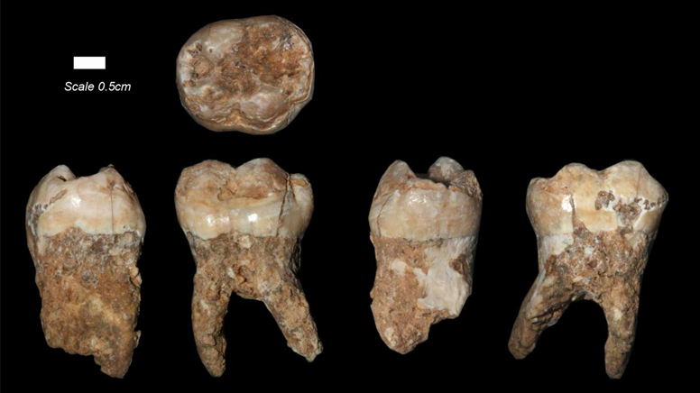 The teeth found at Qesem Cave outside of Tel Aviv (Courtesy: Prof. Israel Hershkovitz/Tel Aviv University)