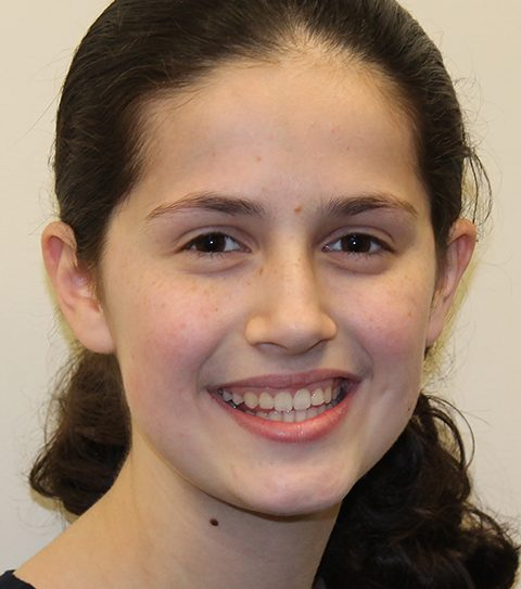 Estee Ackerman, 14 - Tables Her Athletics for Shabbat
