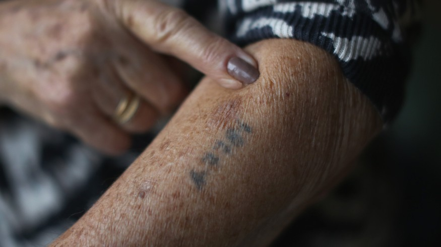 A Holocaust survivor shows her number tattoo