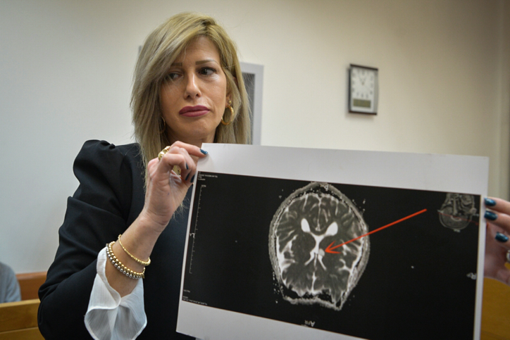 The lawyer of the young Israeli hacker, suspected of sending bomb threats to Jewish facilities across the world, shows the court an image of a tumor in her client's brain, at the Rishon Lezion Magistrate's Court, on March 30, 2017. (Flash90)