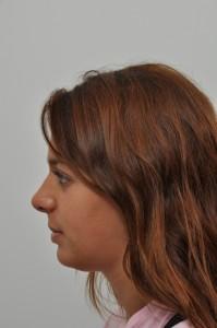 Rhinoplasty Can Improve Self-Image 1