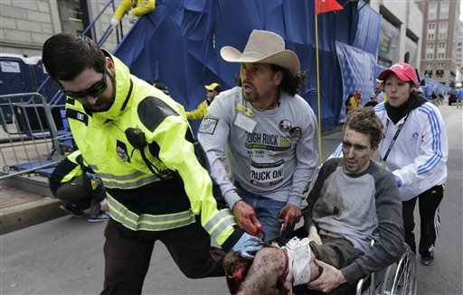 Jeff Bauman lost both legs below the knee at the Boston Marathon  bombing, April 15, 2013. (AP Photo / Charles Krupa)