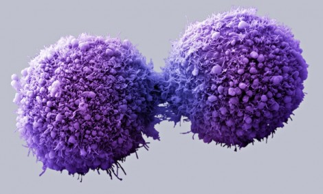 Cancerous cell dividing.