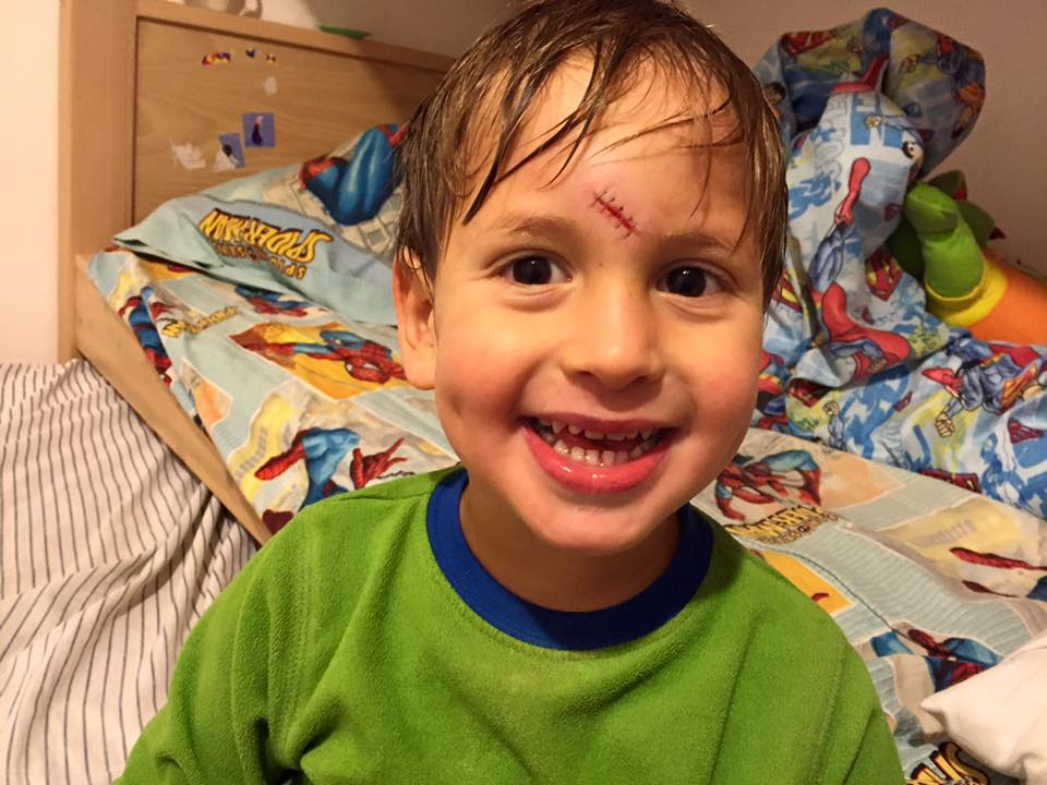 Elad, my funny Frankenstein, days after being stitched up. (courtesy)