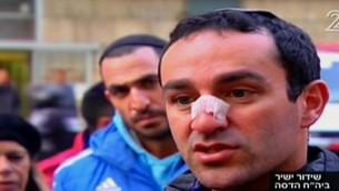 Eitan Rod s'adresse aux journalistes depuis l'hôpital Hadassah Ein Kerem après un attentat au camion bélier à Jérusalem, le 8 janvier 2017. (Crédit : capture d'écran Deuxième chaîne)